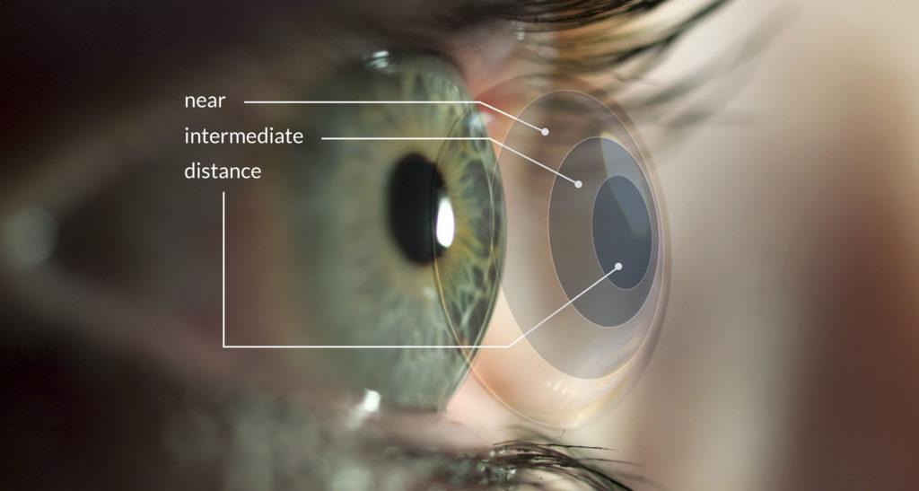 myopia control contact lenses